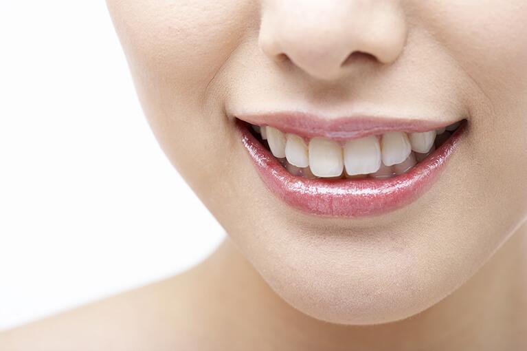 審美歯科とは?