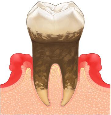 歯周病(中度)