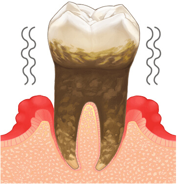 歯周病進行の検査